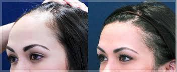 تصغير الجبهة بزراعة الشعر