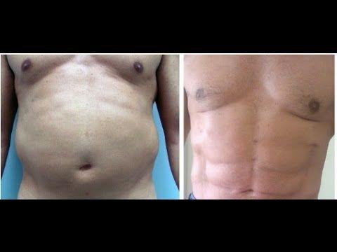 التقدم العلمي وعمليات شفط الدهون