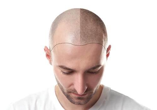 تكلفة زراعة الشعر بتركيا 2018