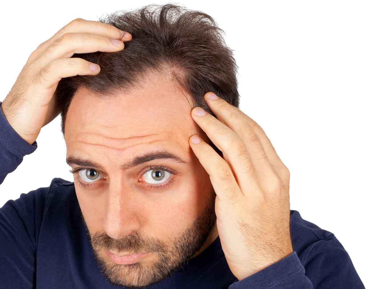 زراعة الشعر في تركيا (تجربتي)
