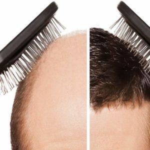 أهم مراكز زراعة الشعر في تركيا